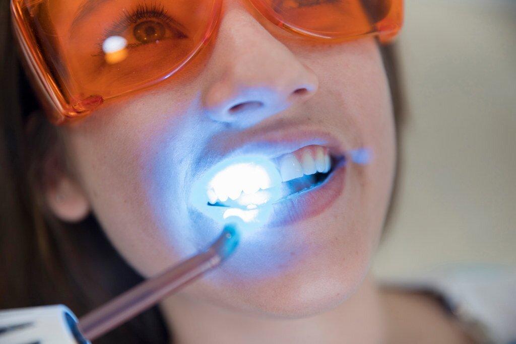 Wybielanie zębów metody