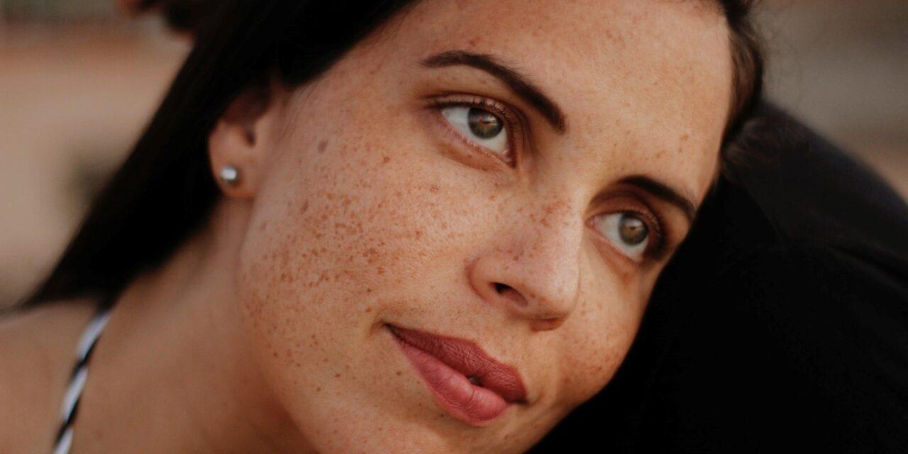 Łuszczyca na twarzy — jak leczyć i jakie są objawy?