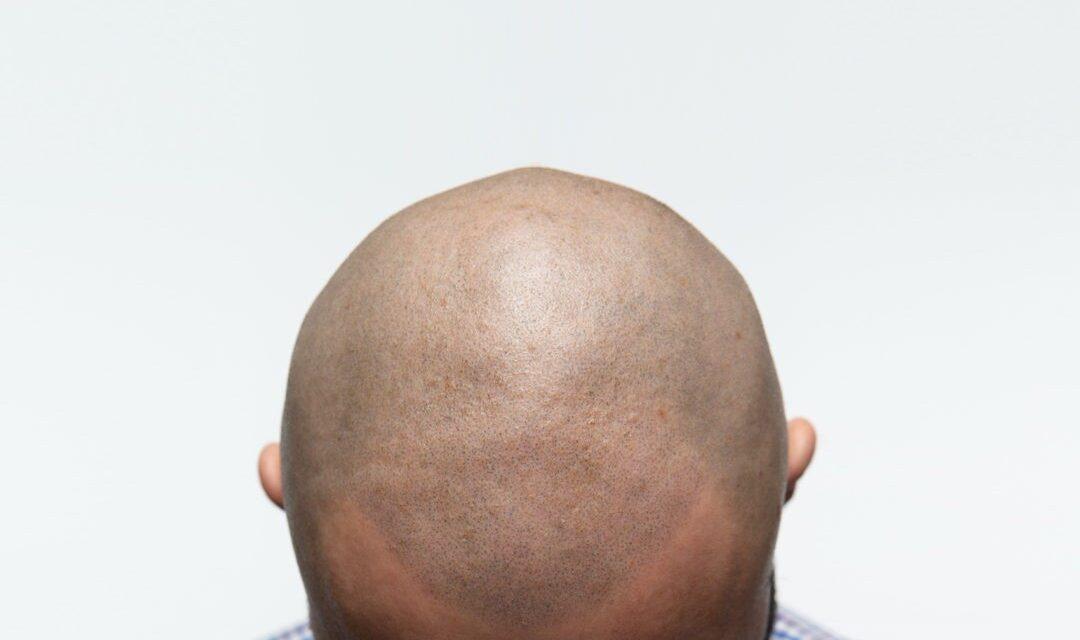 Dlaczego warto zdecydować się na mikropigmentację skóry głowy?